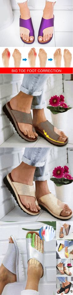 Still worry about toe foot correction?A Perfect shoes solve all your problem~Onl… Still worry about toe foot correction?A Perfect shoes solve all your problem~Onl…,Kleidung Still worry about toe foot correction?A Perfect shoes solve all. Cute Shoes, Me Too Shoes, Bunion Shoes, Shoes 2018, Pumps, Heels, Heeled Sandals, Strappy Sandals, Summer Shoes