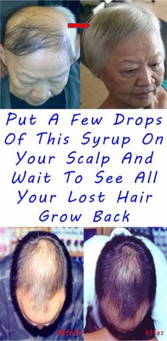 Put A Few Drops Of This Syrup On Your Scalp And Wait To See All Your Lost Hair Grow Back #health #hair #beauty #grow #diy #oil