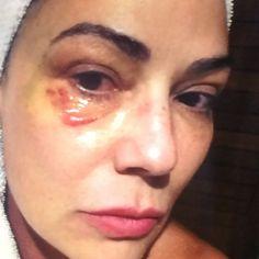 TV revela imagem de hematoma no rosto da modelo e atriz Luiza Brunet