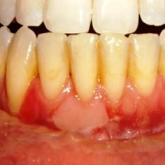 Gum Disease Causes And Treatment