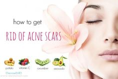 How to remove acne scars from face fast at home? Here are 31 effective solutions to help you remove acne scars naturally. Cystic Acne Remedies, Natural Acne Remedies, Skin Care Remedies, Baby Acne, Acne Scar Removal, Remove Acne, Hormonal Acne, How To Get Rid Of Acne, Top