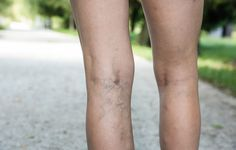 Soothe away varicose veins with these tricks you can try at home.