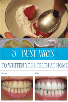 Teeth Whitening- 5 BEST WAYS TO WHITEN YOUR TEETH AT HOME