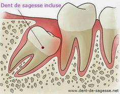 tarif de l'extraction de dent de sagesse incluse