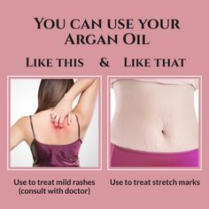 Ladies, how do you use your multiuse, Argan Oil? Acne Skin, Acne Prone Skin, Sugaring Hair Removal, Fuller Hair, Physical Condition, Strong Hair, Hair Health, Stretch Marks, Hair Oil