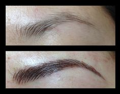 12. Before / After
