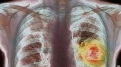 Ayahku Terkena Kanker Paru-paru, Kini Hanya Bisa Terbaring