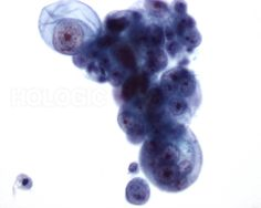 Ductaal carcinoom - Pap kleuring