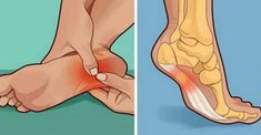 Watch This Video Ambrosial Home Remedies Swollen Feet Ideas. Inconceivable Home Remedies Swollen Feet Ideas. Heel Pain, Foot Pain, Ankle Pain, Foot Remedies, Natural Remedies, Facitis Plantar, Healing Plantar Fasciitis, Health Problems, Ways To Lose Weight
