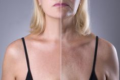 Rejuvenation Woman`s Skin, Before After Anti Aging Concept, Wrinkle Treatment, Facelift And Plastic Surgery Stock Photo - Image of compare, female: 85542482 Calendula Benefits, Matcha Benefits, Health Benefits, Sun Damaged Skin, Plastic Surgery, Skin Care Tips, Healthy Skin, Anti Aging, Skin Whitening