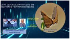 Πρωτοπαθής υπερπαραθυρεοειδισμός - διπλό αδένωμα παραθυρεοειδούς