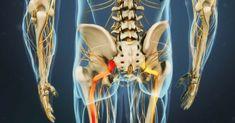 Conozca 3 remedios naturales para ayudar en el tratamiento de sus dolores en la ciática - e-Consejos