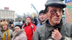 A protester injured in clashes with police stands on Independence Square on November 30. A protester injured in clashes with police stands o...