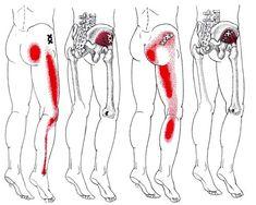 Chronic Sciatica, Sciatic Pain, Sciatic Nerve, Nerve Pain, Sciatica Pain Treatment, Sciatica Relief, Pain Relief, Muscle Knots, Psoas Release
