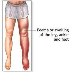 Excellent Herbal Remedies for Edema. I have had this in my right leg and foot. It is not fun and if the lymph nodes clog you are swollen for the rest of your life.