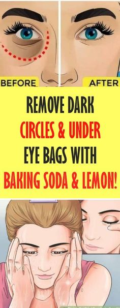 Remove Dark Circles - Under Eye Bags with Baking Soda - Lemon! Great Healt Remove Dark Circles – Under Eye Bags with Baking Soda – Lemon. Diy Beauty Hacks, Beauty Hacks For Teens, Baking Soda And Lemon, Baking Soda Hair, Baking Soda Uses, Dark Circles Under Eyes, Dark Spots Under Eyes, Under Eye Wrinkles, Concealer For Dark Circles