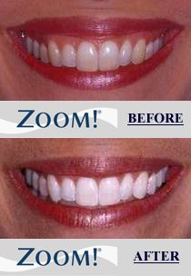 Whitening Do you want to Zoom! in one hour? The Zoom! In-Office Whitening System is a revolutionary tooth whitening procedure. Its safe effective and fast very fast. In just over an hour your teeth will be dramatically whiter. Zoom Teeth Whitening, Teeth Whitening Procedure, Dental Health, Dental Care, Dental Cosmetics, Teeth Bleaching, Dental Services, Natural Beauty Tips, Cosmetic Dentistry