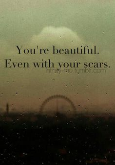 You're beautiful. Even with your scars