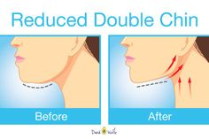 Exercises For Getting Rid Of That Unwanted Double Chin & Neck Fat