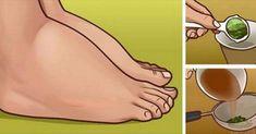 Watch This Video Ambrosial Home Remedies Swollen Feet Ideas. Inconceivable Home Remedies Swollen Feet Ideas. Foot Remedies, Arthritis Remedies, Headache Remedies, Skin Care Remedies, Health Remedies, Natural Remedies, Blood Pressure Diet, Blood Pressure Remedies, Parsley Tea
