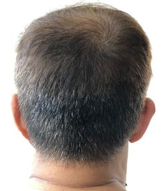 Haircuts for Thinning Crown Haircut for thinning crown – who says you can't look good with thinning hair? Hairstyles For Balding Crown, Mens Haircuts Thin Hair, Haircuts For Balding Men, Crown Hairstyles, Cool Haircuts, Men Hairstyles, Bald Hair, Bald Men, Thinning Hair