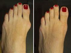 Подагра лечение народными средствами. Шишки на ногах. Как лечить подагру.