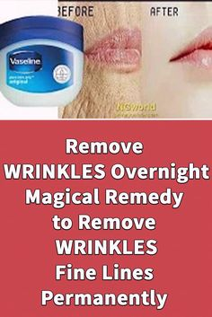 Best Wrinkle Treatment, Wrinkle Remedies, Face Wrinkles, Wrinkled Skin, Face Skin Care, Wrinkle Remover, Health And Beauty Tips, Skin Treatments, Anti Aging Skin Care