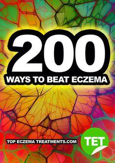 Eczema Treatments: The ULTIMATEList of 200 Treatments