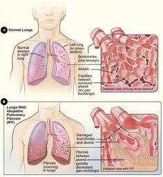 Avanzando hacia la prevención de una enfermedad silenciosa insalvable para los que la padecen, la  #fibrosis pulmonar.