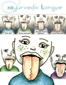 Great article in what your tongue is telling you!
