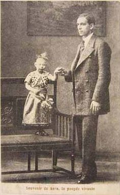"""Child Pinhead """"Arsa"""" real photo pitchcard from 1914. (She looks very much like Jenny Lee Snow from Tod Browning's 'Freaks' possibly rebranded when paired with Elvira Snow)"""
