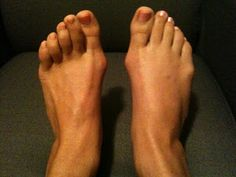 First post on Bunions Be Gone