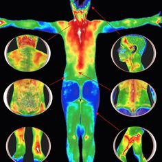 Image result for thermography cervical cancer