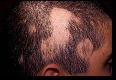 FLEKKVIS HÅRAVFALL ( Alopecia areata ) Alopecia areata, eller skallede flekker uten hår, er en hudsykdom der en person plutselig får hårløse hudflekker. De fleste som får dette vil få en til to hårløse hudflekker, og i noen tilfeller kan alt kroppshår forsvinne.  Årsaken er ukjent, men tilstanden oppfattes som en såkalt auto-immun tilstand, som vil si at det er eget immunforsvar som har skylden, fordi det angriper seg selv.  #Flekkvishårtap #hårtap #håravfall #Alopecia #dsddeluxe