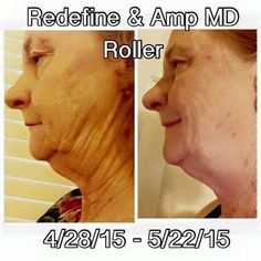 Rodan and Fields REDEFINE AND AMP MD ROLLER. 1 month! Message me!! https://giddyup.myrandf.com