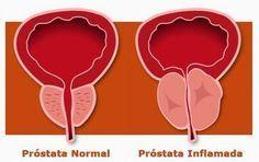 La mejor cura para la próstata en el mundo, no hay nada mejor! | La Salud Es Todo