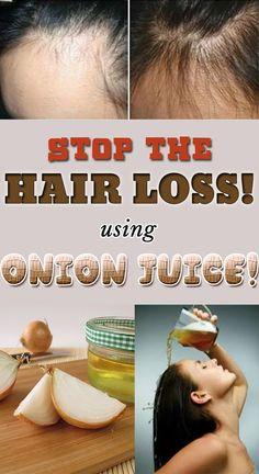 Balding Remedies Stop the hair loss using onion juice! Stop Hair Loss, Prevent Hair Loss, Onion Benefits Health, What Causes Hair Loss, Onion For Hair, Onion Hair Mask, Regrow Hair Naturally, Hair Loss Shampoo, Hair Loss Women