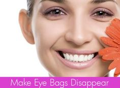How to Eliminate Eye Bags With Easy Natural