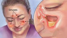 Kill Sinus Infection Within Minutes.Kill Sinus Infection Within Minutes.Kill Sinus Infection Within Minutes.Kill Sinus Infection Within Minutes. Infection Des Sinus, Nose Infection, Ear Infection Symptoms, Viral Infection, Natural Health Remedies, Natural Cures, Natural Healing, Stress, Health Tips