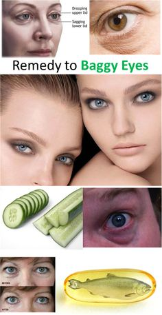 Natural Home Remedy to Baggy Eyes