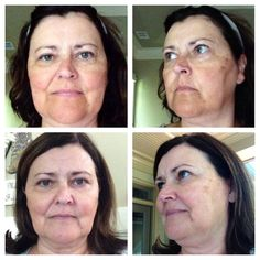 THIS is Jill McCord and she became a consultant on our team after her daughter sold her the Reverse Regimen and she got THESE RESULTS!!! She used the Reverse Regimen for 6 weeks and instead of sending all her friends who were asking about her skin to her daughter Jamie Lea Keener she just decided to JUMP IN! www.nknepp.myrandf.com/SHOP/REVERSE
