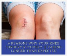 6 Reasons Why Your Knee Surgery Recovery Time Is Taking Longer - SimplyJnJ Is your knee surgery recovery time not going as fast as you'd like? Have a look at our recent post where you'll discover 6 things that you might be doing to sabotage your recovery. Knee Replacement Recovery, Partial Knee Replacement, Knee Replacement Surgery, Acl Surgery Recovery, Acl Recovery, Acl Knee, Knee Injury, Meniscus Surgery, Knee Operation