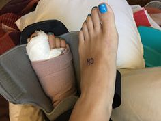 Well I took the dive and just got my right foot done as well. Bye bye last bunion! Had my surgery on Tuesday and it is now Friday. No rea... Tailors Bunion, Bunion Surgery, Morton's Neuroma, Hammer Toe, Surgery Recovery, Medical Advice, Body Care, Bye Bye, Animated Gif