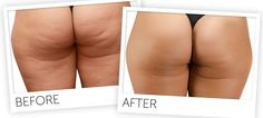 Reviews: Cellulite Factor Solution System! remove cellulite and how to get rid of cellulite naturally on your butt, hips, thighs, legs and stomach in 14 day!