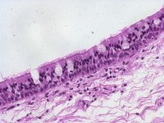 stratified columnar histology and skin flashcards | quizlet, Muscles