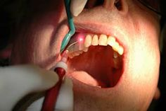 A dental laser is a type of laser designed specifically for use in oral surgery or dentistry...