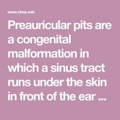 Learn About Preauricular Pits, That Hole in Your Child's Ear | ear