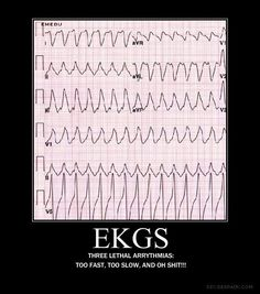 Deadly ekg...will need soon