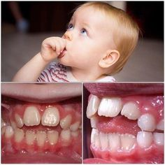 Thumb sucking is natural and often starts in the womb. But if it continues after the age of five it can alter the teeth, bites, and jaws.