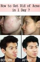 How to Get Rid of Acne in 1 Day ?